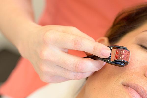 Mesotherapie im Gesicht mit einem Mesoroller