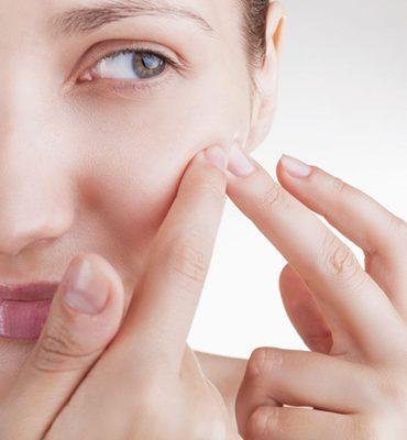 Aknebehandlung und Behandlung von Hautproblemen bei MEDISPA in Köln