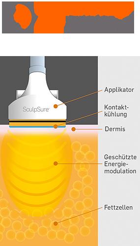 Fett-Weg-Behandlung im Medispa in Köln