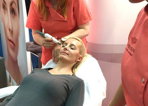 TDA Behandlung auf der Hochzeitsmesse in Köln von MEDISPA