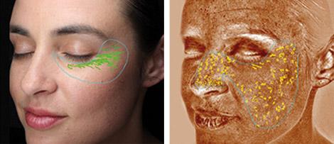 Analyse von Falten in der Haut mit Visia in Köln
